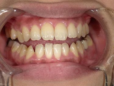 八戸市 くぼた歯科医院 ホワイトニング ポリリン