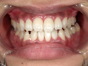 八戸市くぼた歯科医院 ホワイトニング ポリリン