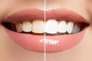 professionelle-zahnaufhellung-zahnbleaching-zahnarztpraxis-carina-sell-gießen