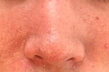 脂漏性皮膚炎 グリーンピール サロンドノム