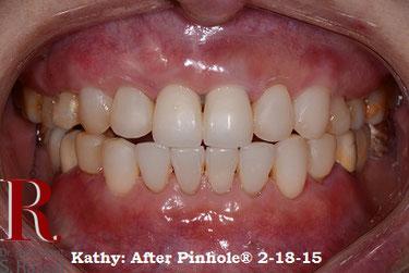 Zahnfleisch 8 Tage nachher