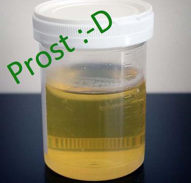 Eigenharnbehandlung mit Urin
