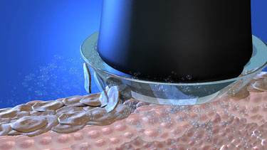 Mikrodermabrasion bei Bodyzone Cosmetics & Spa