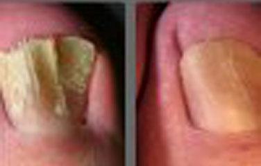 Schimmelnagel Infectie Pinpointe Laser Chantilly
