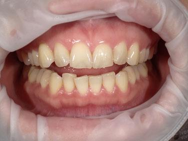八戸市 くぼた歯科医院 ホワイトニング