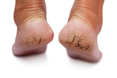 Behandlung gegen Schrunden