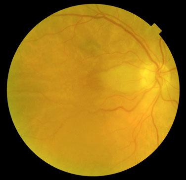 Fond d'oeil d'une occlusion artérielle cilio-rétinienne droite