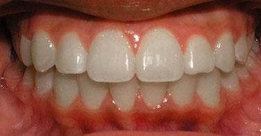 Après traitement orthodontique sans extraction