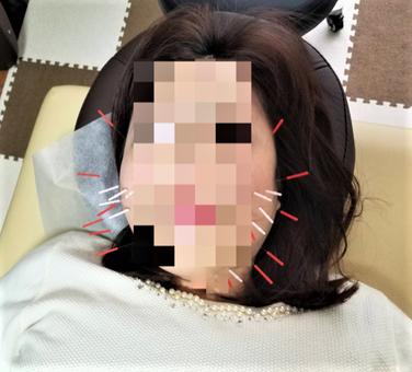 愛知県 小牧市 鍼灸 鍼治療 美容鍼