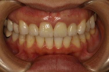 差し歯の歯茎の回復