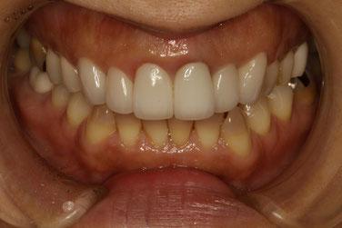 差し歯の歯ぐきの腫れ