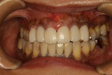 ブリッジの差し歯の歯ぐきの治療