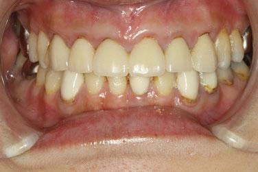 差し歯の再治療