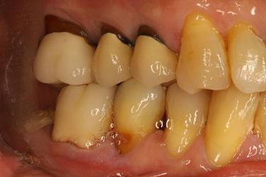 差し歯の歯ぐきが下がった