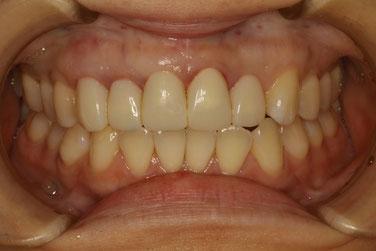 長い差し歯を歯ぐきの再生治療で治す