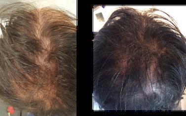 Traitement calvitie par mésogreffe Rigenera 5 mois