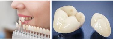 セラミック 白く きれいな歯