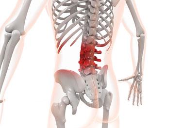 腰の関節が腰痛の原因になることがあります