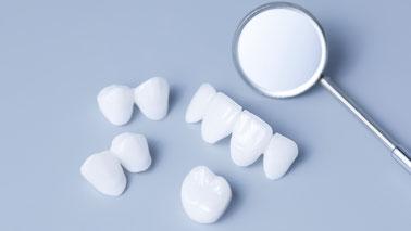 筑紫野市にある歯医者 安田歯科・矯正歯科医院では金属を使わないメタルフリー治療を推奨しています。