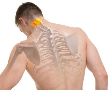 Atlaslogie Bütschli Atlas oberster Halswirbel kann bei Fehlstellung Auslöser von zahlreichen Beschwerden sein wie Kopfschmerzen, Migräne, Rückenschmerzen, Verspannung, Nackenschmerzen