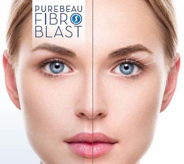 Purebeau Fibroblast in Maarssenbroek / Utrecht