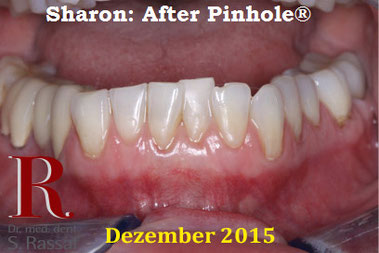 Sehr gute Langzeitergebnisse: Zahnfleisch 6 Jahre nach der PST Behandlung (Zahnfleischlifting)