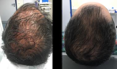 patient après 3 mois 1 séance mésogreffe Rigenera
