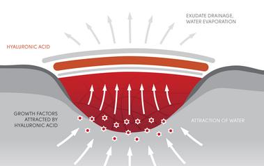 Hyiodine Wirkung graphisch dargestellt