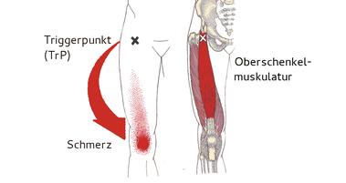 Der im Knie ausgelöste Schmerz kommt von einem Triggerpunkt in der Leiste.