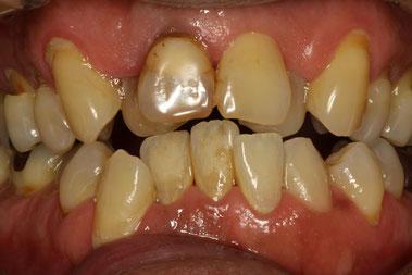 八重歯の歯茎の退縮