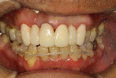 歯茎の治療中の状態