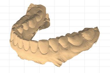 Intraoralscan eines Kiefers vor der additiven Fertigung (3D Druck)