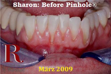 Zahnfleischrückgang Status vor der Behandlung mit PST