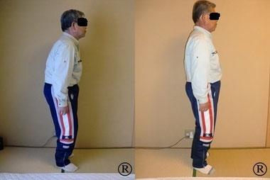 しんそう福井武生で身体の歪みを調整し、腰痛、座骨神経痛も改善しました。