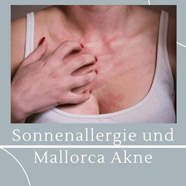 Ausschlag bei Sonnenallergie und Mallorca Akne