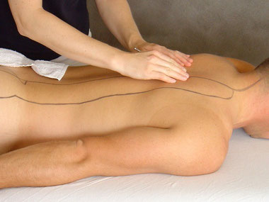 Akupunktmassage, Fachgruppe Physiotherapie Skoliose