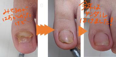 ポロッととれた爪の経過