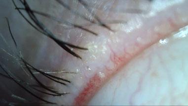 gerötete Lidkante mit verstopfter Meibom-Drüse, Trockene Augen/Sicca Syndrom