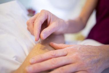 Akupunktur in Weil der Stadt, Chinesische Medizin, TCM