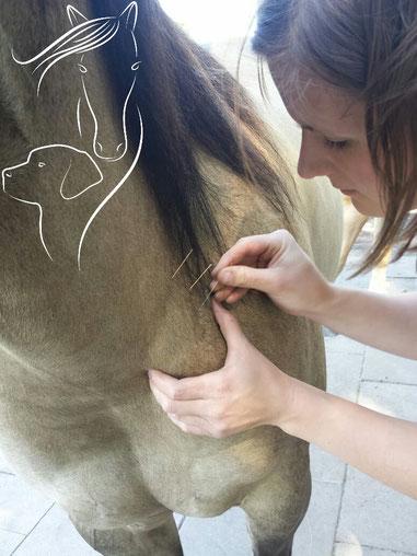 Dry Needling Detailbild