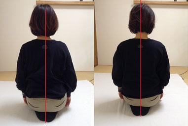 しんそう福井武生では、身体の歪みを調整し、ぎっくり腰なども改善します。