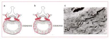 札幌-脊髄洞神経