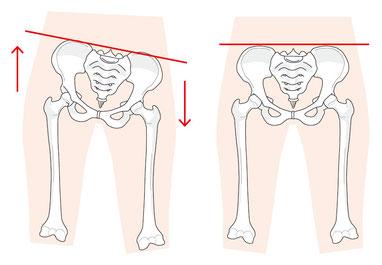腰痛の痛みの場所や原因も様々