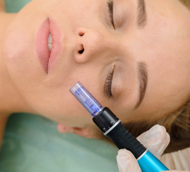 MICRONEEDLING Schulung