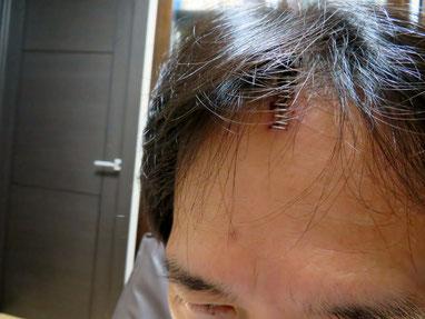 医療用ホチキスで留めた傷口。