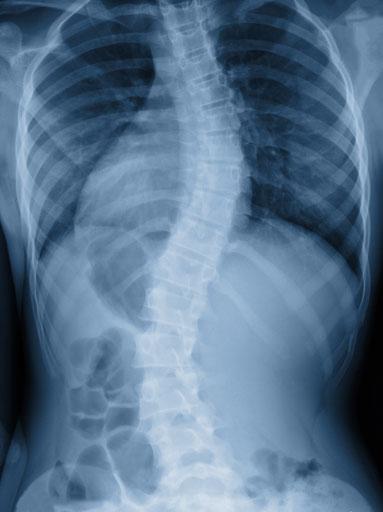 Bild einer Scoliose - Behandlung der Faszien