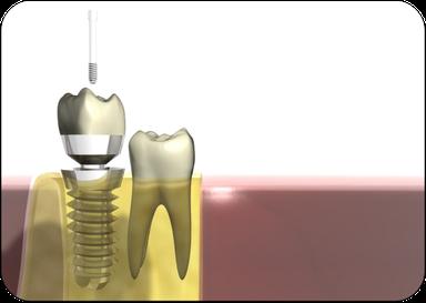 Implantat: Schraubenförmige Wurzel im Kiefer (unten) mit aufgesetzter Krone (oben) (© Markus Kretschmar - Fotolia.com)