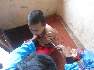破傷風の予防接種