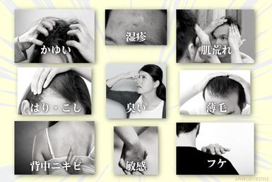 フケかゆみ・アトピーに効果のある無添加全身シャンプー、皮膚刺激の比較グラフ