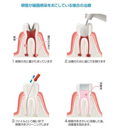 八戸市の歯医者 くぼた歯科 神経 根 痛くない おすすめ